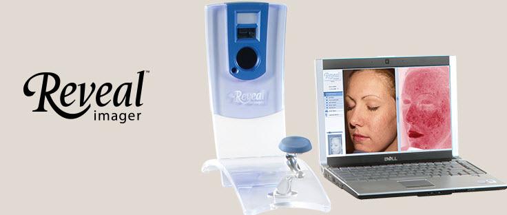 Reveal-Image-Dermatologia-Tecnologia-Renata-Valente